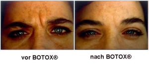 vorbotox nach botox 2